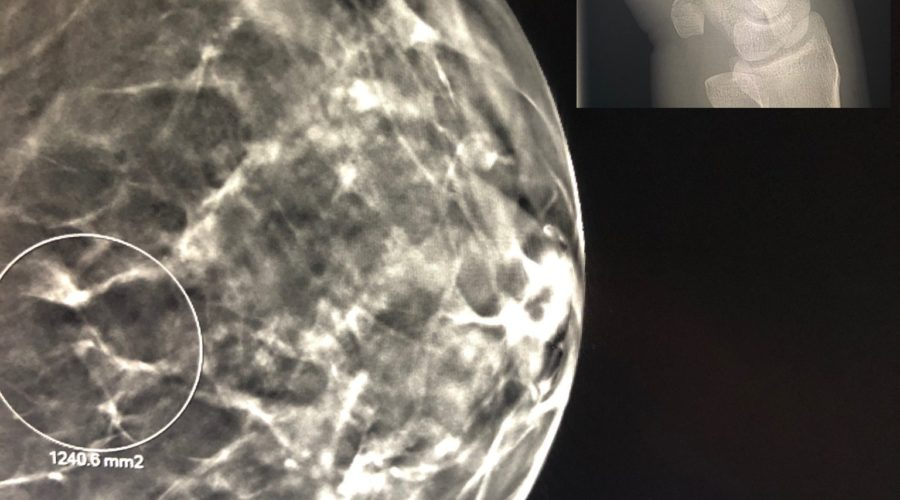 Breast Imaging Versus MSK- What's Better For Marketability And Lifestyle?